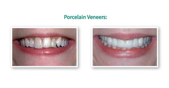 Porcelain Dental Veneer