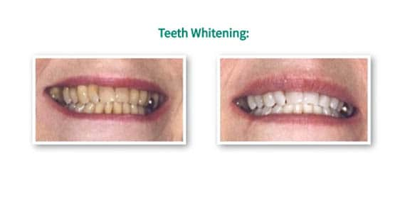teeth whitening elder