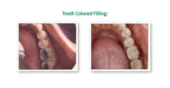 tooth colored fiilings
